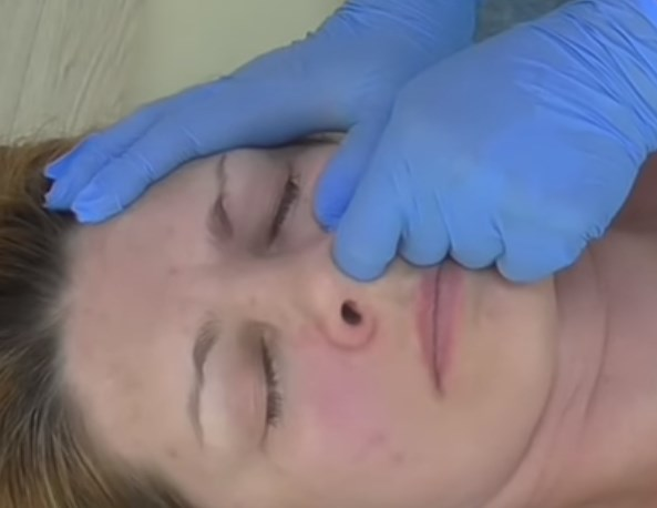 миофасциальный массаж лица требует глубокой проработки фасций
